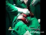 Bizarre Ball Sack infection