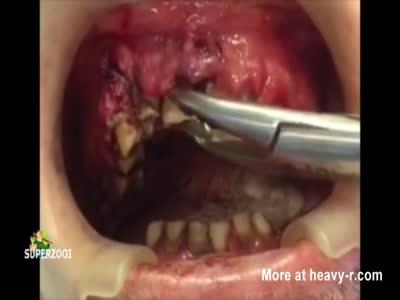 Maggot Mouth