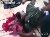 Drug Dealer Shot In Head
