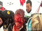 Brutal skiing accident