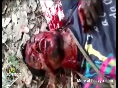 Stabbed In The Neck And Throat