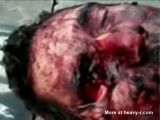 Machete wound in the face